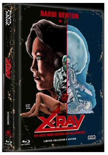 X-Ray - Der erste Mord geschah am Valentinstag (Limited Mediabook, Blu-ray+DVD, Cover B) (1982) [FSK 18] [Blu-ray]
